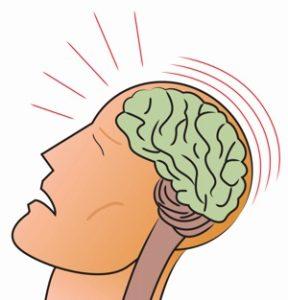 Head Injury Prevention Workshop